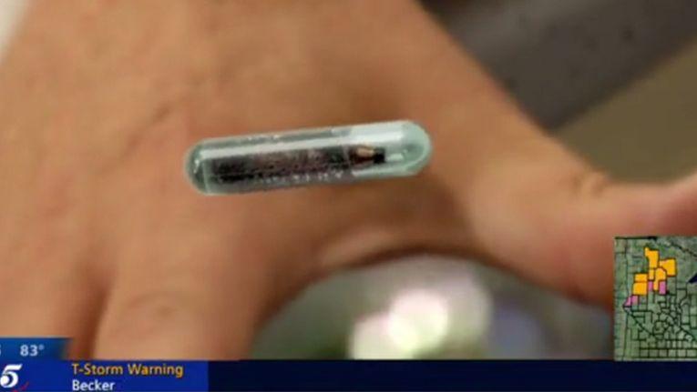 Der Mikrochip hat die Größe eines Reiskorns.